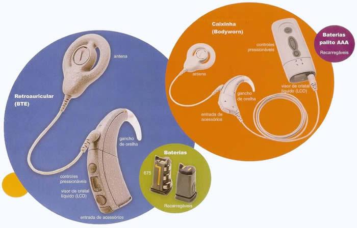 implante-coclear-como-funciona-o-produto